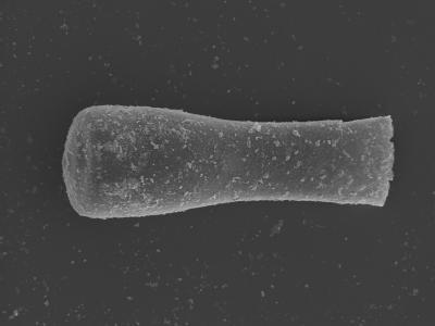 <i><i>Conochitina subcyatha</i></i><br />Kolka 54 borehole, 486.20 m, Jaagarahu Stage ( 754-455)