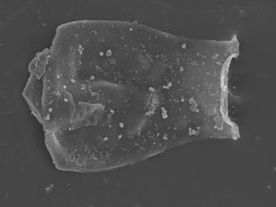 <i><i>Cingulochitina gorstyensis</i></i><br />Ohesaare borehole, 136.00 m, Rootsiküla Stage ( 754-352)