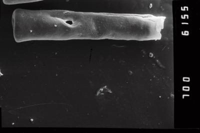 <i><i>Conochitina claviformis</i></i><br />Ohesaare borehole, 68.30 m, Kuressaare Stage ( 754-1046)