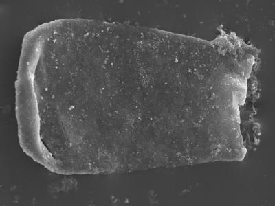 <i><i>Conochitina elongata</i></i><br />Kolka 54 borehole, 621.70 m, Raikküla Stage ( 754-405)