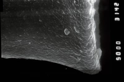 <i><i>Euconochitina electa</i></i><br />Viki borehole, 217.00 m, Raikküla Stage ( 754-930)