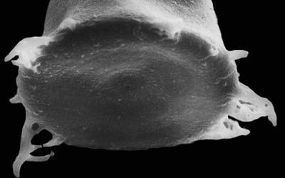 <i><i>Spinachitina cervicornis</i></i><br />Kerguta 565 borehole, 136.90 m, Haljala Stage ( 544-25)