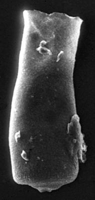 <i><i>Conochitina visbyensis</i></i><br />Jaagarahu borehole, 46.40 m, Jaani Stage ( 189-13)