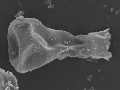 <i><i>Sphaerochitina concava</i></i><br />Ohesaare borehole, 146.95 m, Rootsiküla Stage ( 754-368)