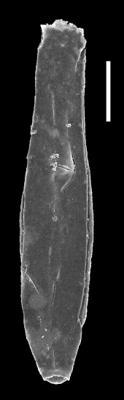 <i><i>Chitinozoa</i> | Velachitina cf. veligera Poumot, 1968</i><br />Museum of Art excavation section, Kadriorg, 0.30 m, Hunneberg Stage ( 424-79)