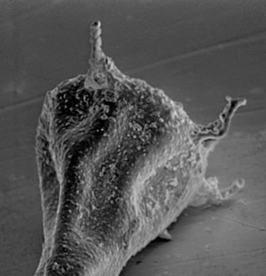 <i><i>Plectochitina nodifera</i> | Ancyrochitina nodifera Nestor, 1980</i><br />Laeva 10 borehole, 124.60 m, Juuru Stage ( 212-5)