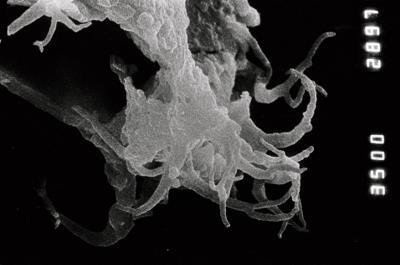 <i><i>Ancyrochitina</i>   Ancyrochitina sp. C</i><br />Ruhnu 500 borehole, 359.25 m, Jaagarahu Stage ( 754-853)