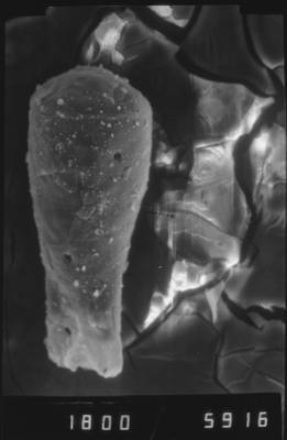 <i><i>Cingulochitina</i> | Cingulochitina? sp.</i><br />Dubovskoye borehole, 1274.00 m, Paadla Stage ( 754-1138)