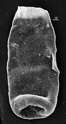 <i><i>Chitinozoa</i> | Conochitina sp. 6  Nestor, 1994</i><br />Aispute 41 borehole, 960.95 m, lower Silurian ( 345-21)