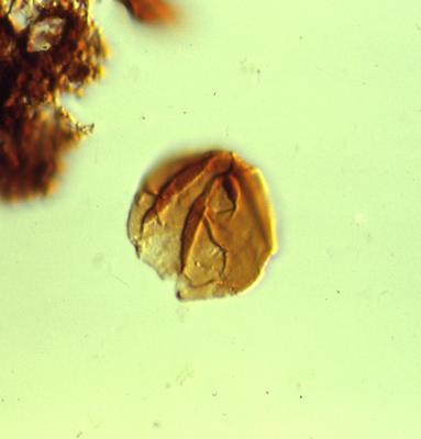 Leiosphaeridia sp., TUG 1520-19