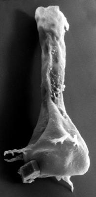 <i><i>Chitinozoa</i> | Ancyrochitina cf. clathrospinosa Eisenack, 1968</i><br />Vängla trench,  m, Adavere Stage ( 272-41)