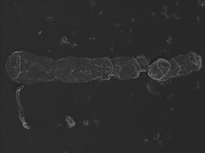 <i><i>Chitinozoa</i></i><br />Kolka 54 borehole, 533.00 m, Jaani Stage ( 754-1225)