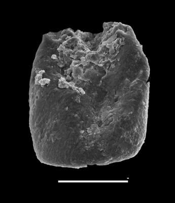 <i><i>Eisenackitina causiata</i> | </i><br />Grötlingbo 1 borehole, Gotland, 379.60 m, Adavere Stage ( 688-32)