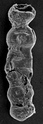 <i><i>Desmochitina</i> | Desmochitina sp.</i><br />Ruhnu 500 borehole, 406.00 m, Jaagarahu Stage ( 197-3)