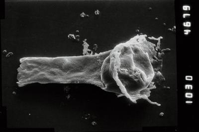 <i><i>Anthochitina primula</i></i><br />Viki borehole, 140.10 m, Adavere Stage ( 754-1113)
