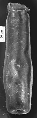 <i><i>Conochitina iklaensis</i></i><br />Ikla borehole, 320.00 m, Adavere Stage ( 350-2)