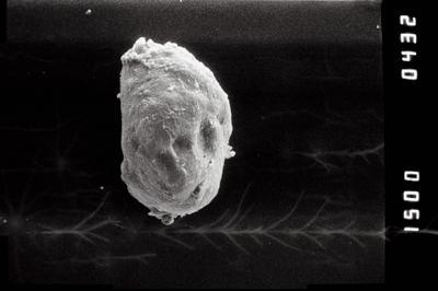 <i><i>Calpichitina acollaris</i></i><br />Ohesaare borehole, 161.70 m, Jaagarahu Stage ( 754-1203)