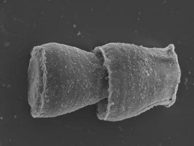 <i><i>Cingulochitina gorstyensis</i> | Cingulochitina gorstyensis?</i><br />Kolka 54 borehole, 476.00 m, Jaagarahu Stage ( 754-453)