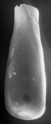 <i><i>Conochitina emmastensis</i></i><br />Vängla trench,  m, Adavere Stage ( 223-17)