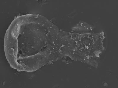 <i><i>Ramochitina tabernaculifera</i> | Ramochitina tabernaculifera?</i><br />Ohesaare borehole, 160.20 m, Jaagarahu Stage ( 754-341)