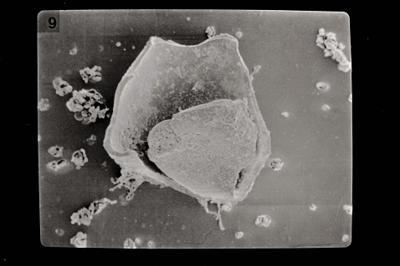 <i><i>Salopochitina filifera</i></i><br />Ventspils D-3 borehole, 330.80 m, Kaugatuma Stage ( 754-605)