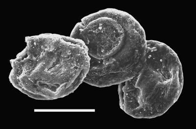 <i><i>Calpichitina gregaria</i></i><br />Ventspils D-3 borehole, 298.10 m, Přidoli ( 607-58)