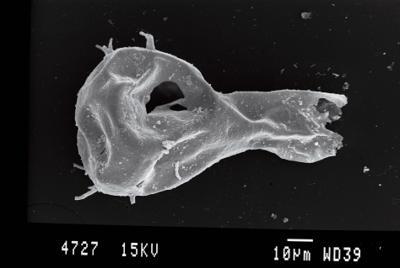 <i><i>Ancyrochitina ancyrea</i> | Ancyrochitina cf. ancyrea</i><br />Ohesaare borehole, 41.00 m, Kaugatuma Stage ( 754-78)