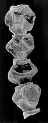 <i><i>Calpichitina densa</i> | Densichitina densa (Eisenack, 1962)</i><br />Kirikuküla borehole, 18.80 m, Adavere Stage ( 272-163)