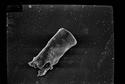 <i><i>Conochitina elegans</i> | Conochitina sp. aff. elegans</i><br />Kihnu 526 borehole, 131.70 m, Jaagarahu Stage ( 754-153)
