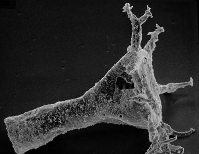 <i><i>Plectochitina nodifera</i> | Ancyrochitina nodifera Nestor, 1980</i><br />Ohesaare borehole, 441.60 m, Juuru Stage ( 212-6)