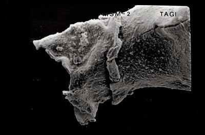 <i><i>Conochitina pachycephala</i> | Conochitina cf. pachycephala</i><br />Varbla 502 borehole, 104.10 m, Jaani Stage ( 754-528)
