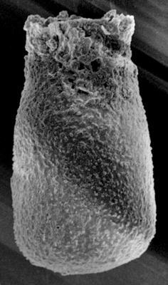 <i><i>Eisenackitina dolioliformis</i></i><br />Varbla 502 borehole, 141.35 m, Adavere Stage ( 223-6)