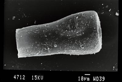 <i><i>Conochitina subcyatha</i> | Conochitina aff. subcyatha</i><br />Gussev 1 borehole, Kaliningrad oblast, 1385.40 m, Paadla Stage ( 754-71)