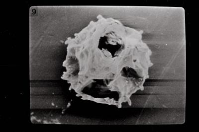 <i><i>Ancyrochitina brevispinosa</i> | Ancyrochitina cf. brevispinosa</i><br />Kaugatuma 509 borehole, 51.40 m, Kuressaare Stage ( 754-714)
