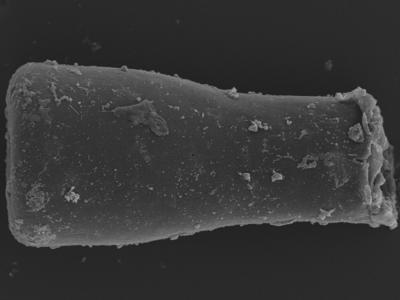 <i><i>Conochitina</i> | Conochitina argillophila?</i><br />Kolka 54 borehole, 492.60 m, Jaagarahu Stage ( 754-1258)