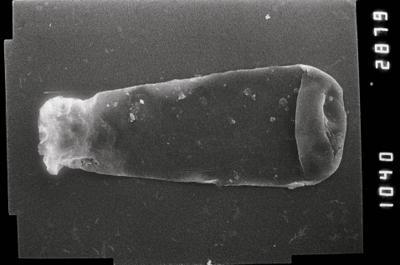 <i><i>Conochitina</i> | Conochitina aff. edjelensis</i><br />,  m,  ( 754-849)