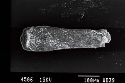 <i><i>Conochitina claviformis</i></i><br />Gussev 1 borehole, Kaliningrad oblast, 1478.10 m, Rootsiküla Stage ( 754-5)
