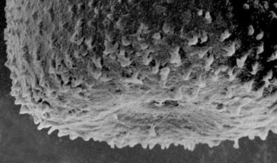<i><i>Belonechitina postrobusta</i></i><br />Ikla borehole, 515.70 m, Juuru Stage ( 212-10)