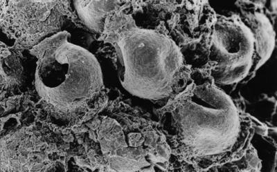 <i><i>Desmochitina nodosa</i></i><br />Ketrzyn IG-1 borehole, 1573.60 m, Idavere Substage ( 300-3)