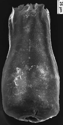 <i><i>Conochitina cribrosa</i></i><br />Ikla borehole, 202.60 m, Jaagarahu Stage ( 350-31)