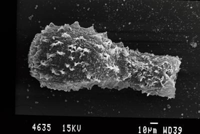 <i><i>Angochitina echinata</i></i><br />Gussev 1 borehole, Kaliningrad oblast, 1393.00 m, Paadla Stage ( 754-58)