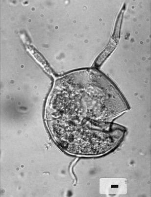 Orthosphaeridium insculptum Loeblich, 1970, GIT 344-247