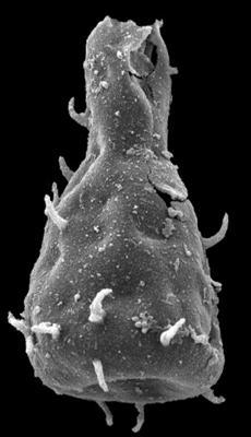<i><i>Ramochitina</i> | Ramochitina sp. C Loydell et al., 2010</i><br />Kolka 54 borehole, 422.80 m, Jaagarahu Stage ( 546-98)