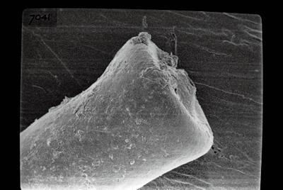 <i><i>Conochitina</i>   Conochitina claviformis Eisenack, 1931</i><br />Kihnu 526 borehole, 176.80 m, Jaani Stage ( 754-832)