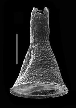 <i><i>Cyathochitina campanulaeformis</i> | </i><br />Grötlingbo 1 borehole, Gotland, 421.60 m, Nabala Stage ( 688-2)