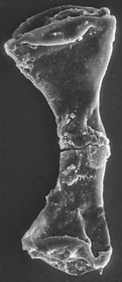 <i><i>Ancyrochitina</i> | Ancyrochitina sp.</i><br />Ventspils D-3 borehole, 815.00 m, Adavere Stage ( 197-23)