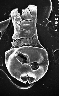 <i><i>Chitinozoa</i> | Lagenochitina sp. cf L. estonica Eisenack 1955</i><br />Varangu stratotype outcrop,  m, Tremadocian ( 1537-11)