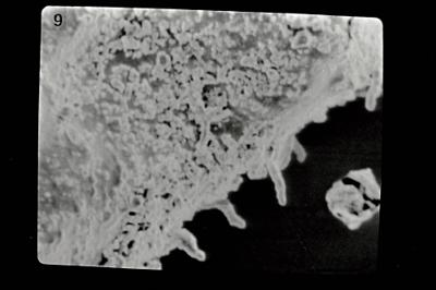 <i><i>Ancyrochitina pedavis</i>   Ancyrochitina cf. pedavis</i><br />Pavilosta 51 borehole, 545.00 m, Kaugatuma Stage ( 754-610)