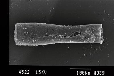 <i><i>Conochitina pachycephala</i> | Conochitina cf. pachycephala</i><br />Gussev 1 borehole, Kaliningrad oblast, 1453.60 m, Paadla Stage ( 754-23)