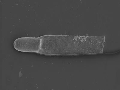 <i><i>Rhabdochitina</i> | Rhabdochitina sp. B</i><br />Kolka 54 borehole, 568.60 m, Adavere Stage ( 754-429)